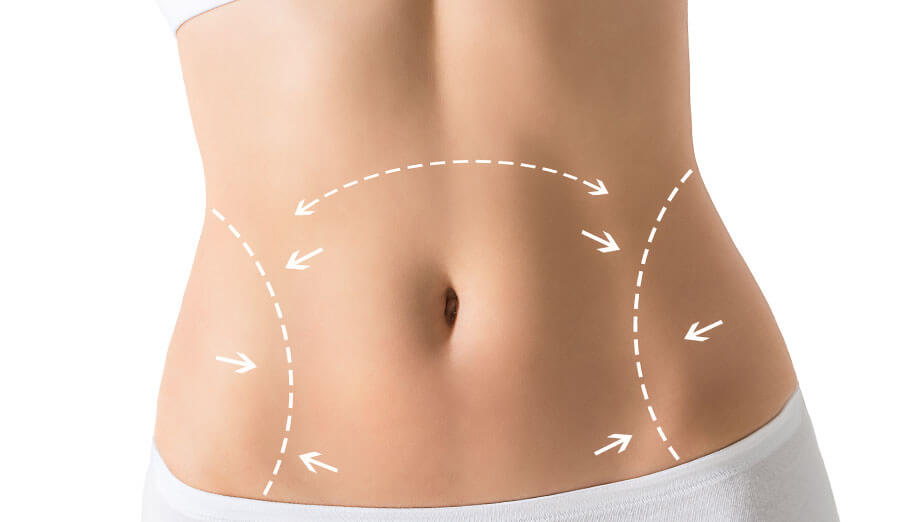 fettpolster bauch six pack chirurgie, BeautyKredit Operation Bauchlifting