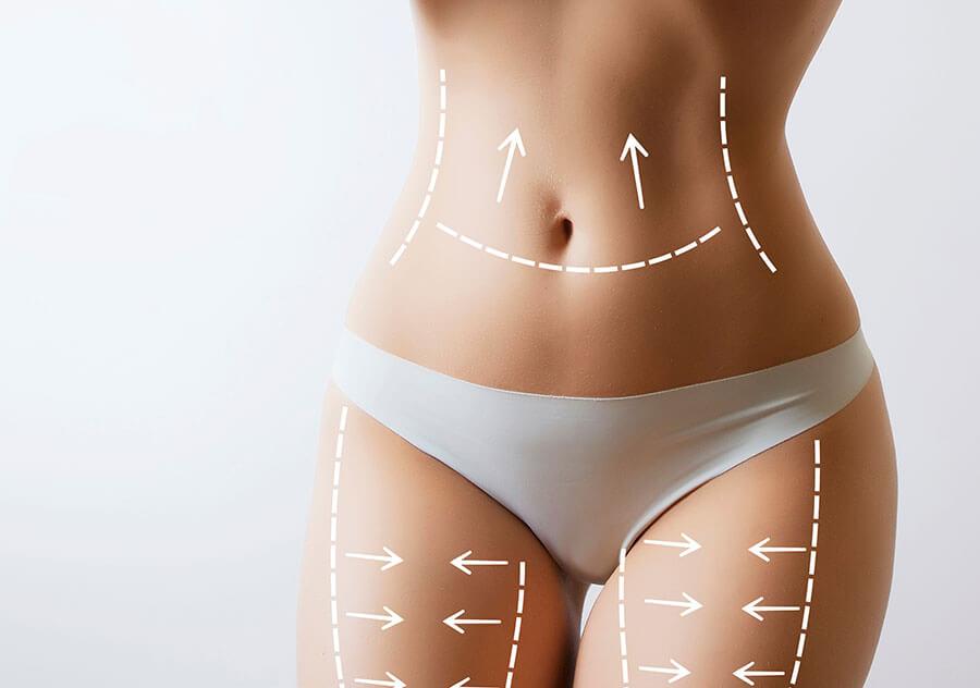 fettabsaugung schönheits-op kosten, Beautykredit Operation Fettabsaugung