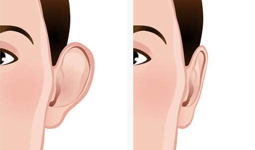 ohren anlegen korrigieren rate, BeautyKredit Operation Ohren