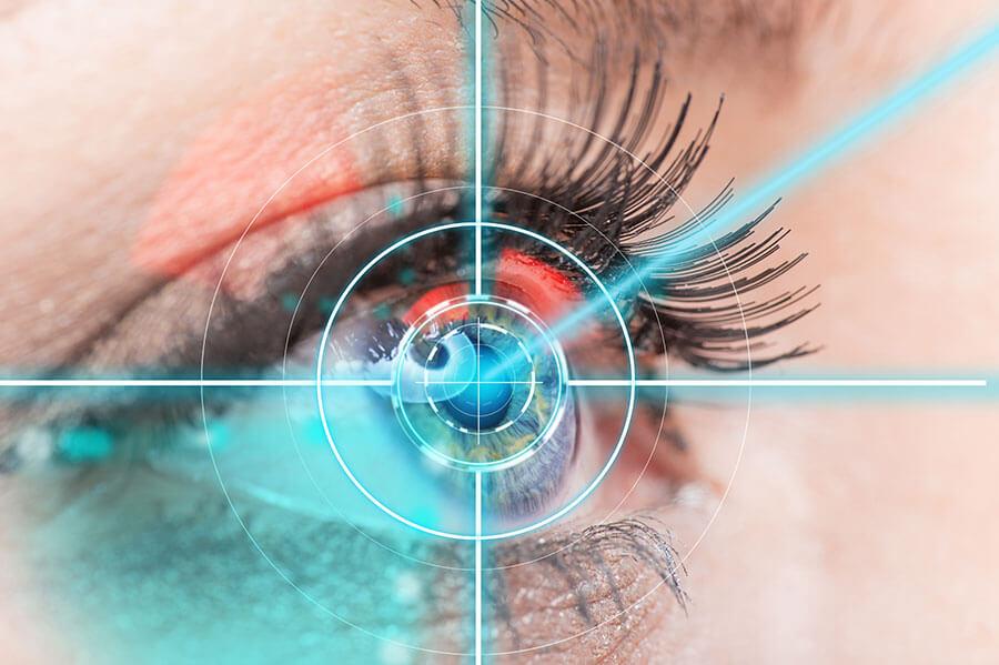 Augen lasern, Augenlasern, Kredit für's Augen lasern, Augenlaserbehandlung