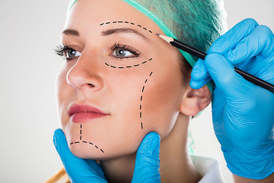 finanzierung gesicht lifting eingriff, beautykredit operation facelifting